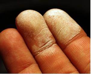 skin immediately after hydrogen peroxide.jpg