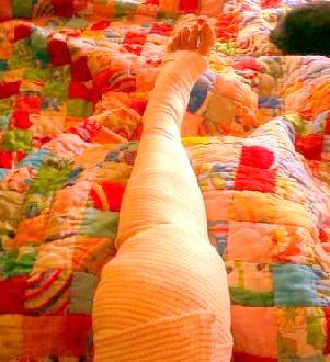 knee surgery (1).jpg