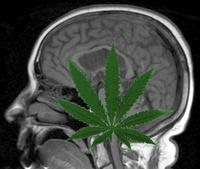 marijuana dimentia study.jpg